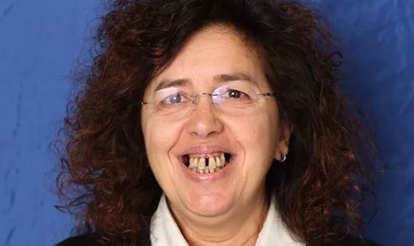 Implantologia dentale prima