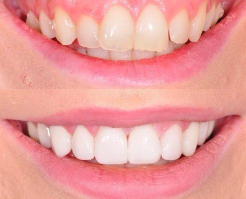 problema sorriso gengivale