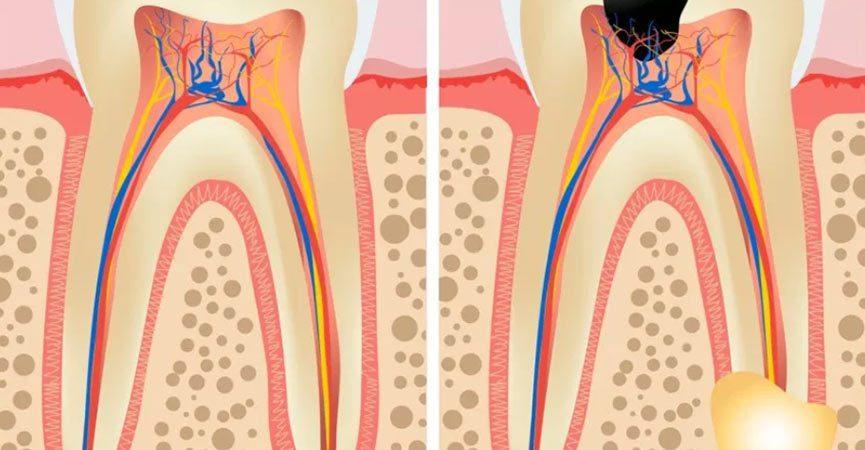 Devitalizzazione dei denti