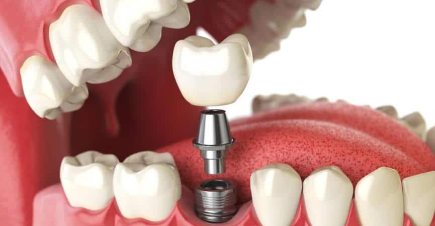Mini impianto dentale