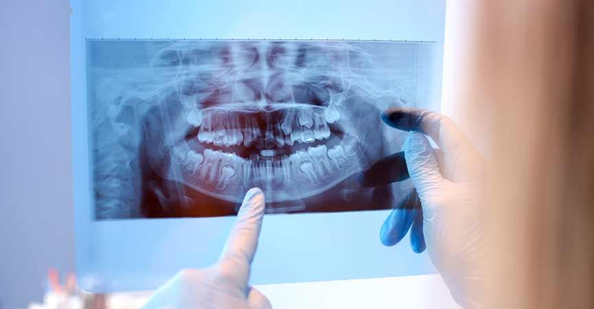Ricostruzione ossea dentale