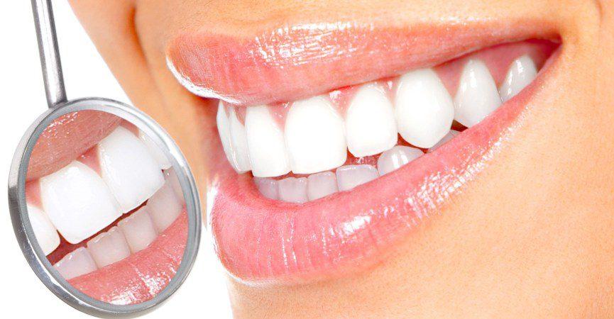 Pulizia dentale professionale