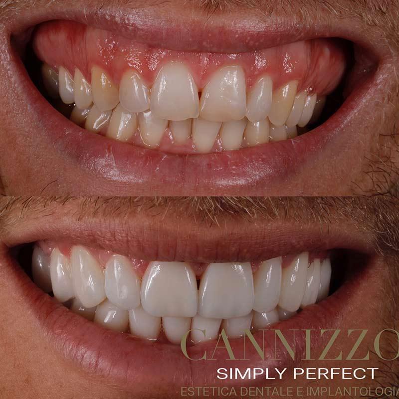 riduzione sorriso gengivale