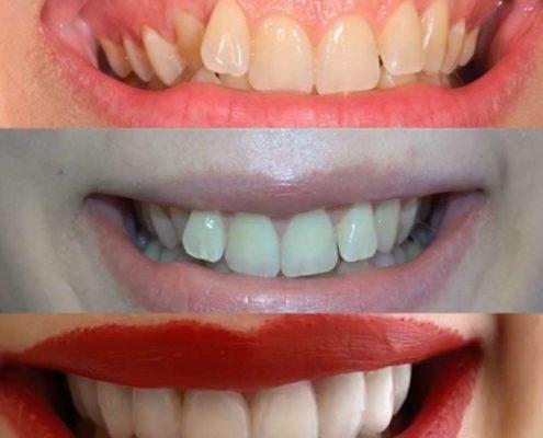 Caso di sorriso gengivale