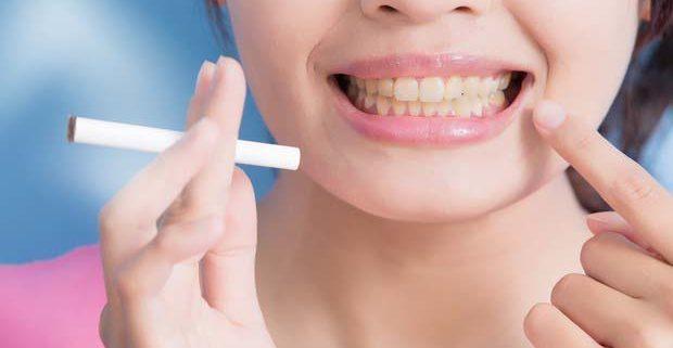 Implantologia dentale per chi fuma
