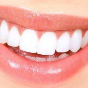 Soluzione ai denti mancanti