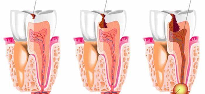 ascesso dentale rimedi