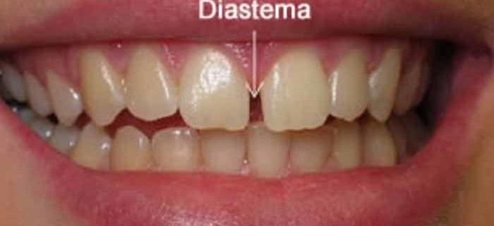 Cause e rimedi diastema