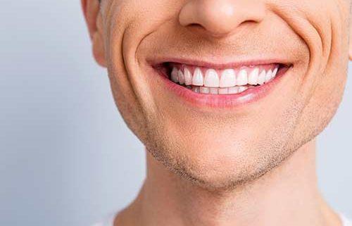 domande frequenti implantologia dentale