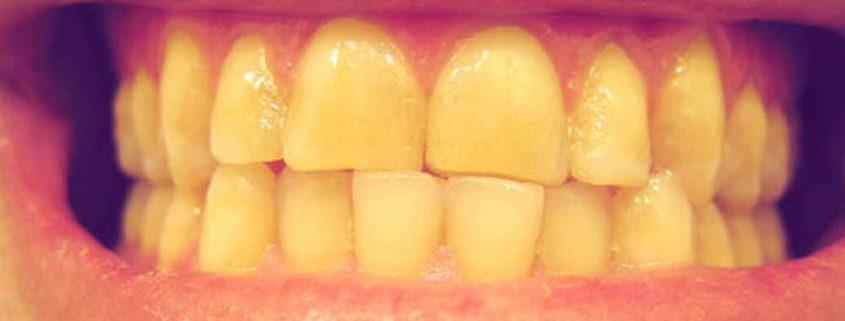 rimedi ai denti gialli