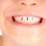 Il dolore dei denti nei bambini