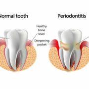 Test del DNA per prevenire la parodontite