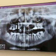 Impianto dentale rigetto