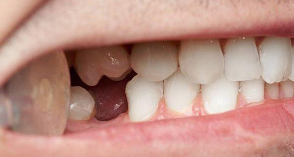 sostituire un dente perso