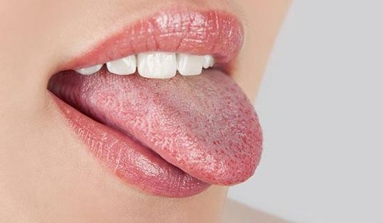 candidosi orale o virale, mughetto