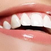Trattamento al fluoro per i denti