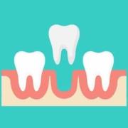 Alveolite dentale