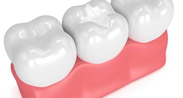 Che cos'è la sigillatura dei denti?