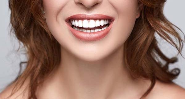 Come avere i denti dritti