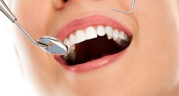 Contornatura e rimodellamento dentale