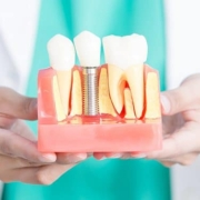 Impianti dentali e diabete