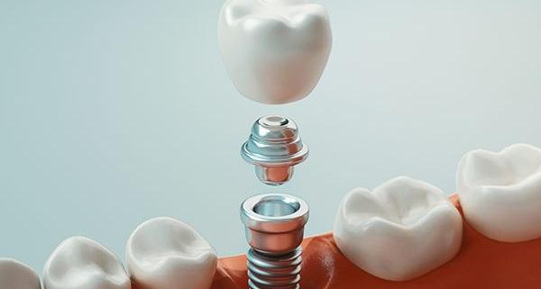 Impianto dentale con poco osso