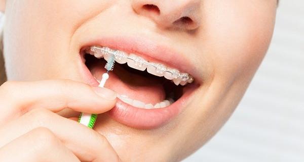 Scovolino per denti