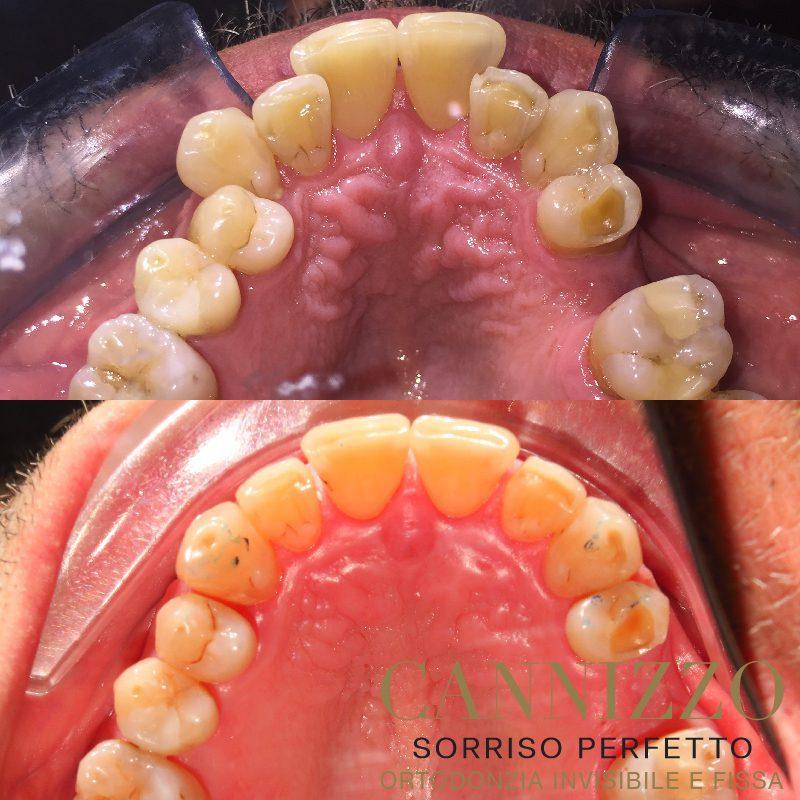 Invisalign prima e dopo, caso ortodonzia adulto