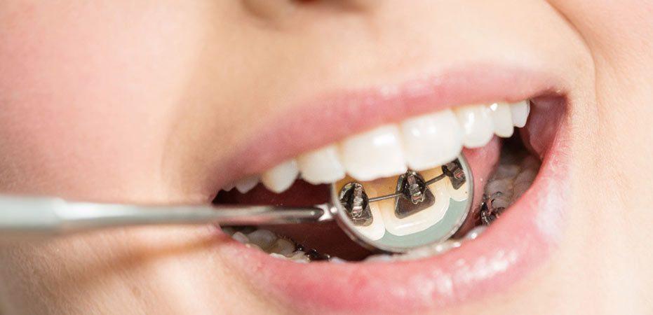 apparecchio linguale interno