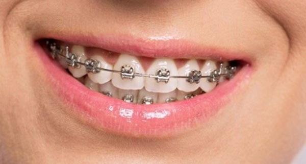 Tipologie di apparecchio ortodontico