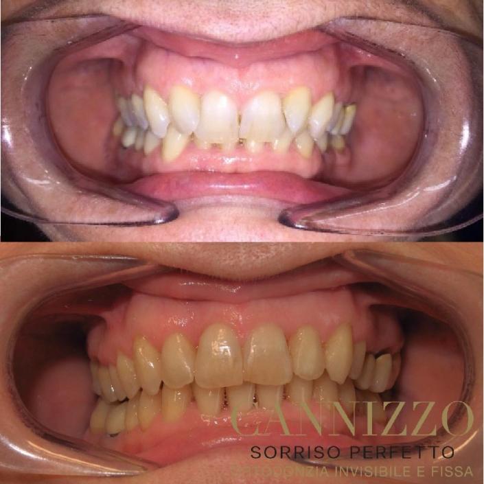Caso paziente raddrizzamento denti con Invisalign