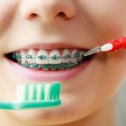 come pulire l'apparecchio per denti
