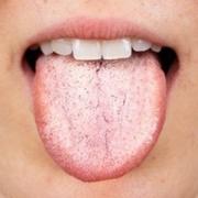 Lingua bianca, cos'è, sintomi e cura - Cannizzo Studio Milano