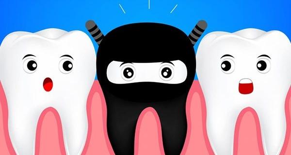 Perché un dente diventa nero?