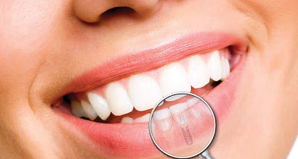 Impianto dentale: quello che devi sapere