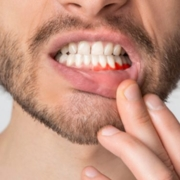 Pulpite dentaria
