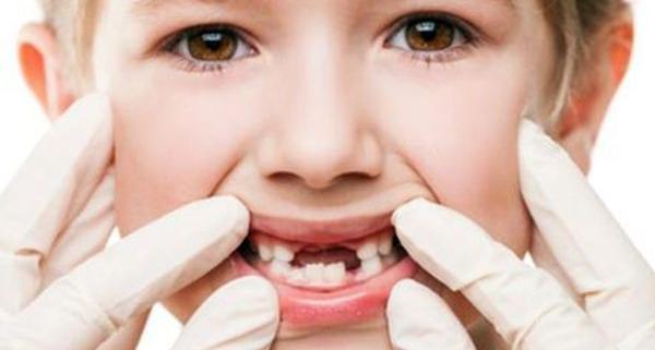 Malattia dentale rara: Anodontia