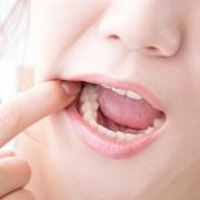 Gli stadi della carie dentale
