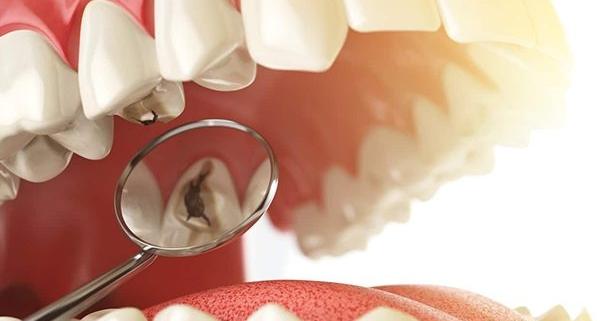 Classificazione delle carie dentali