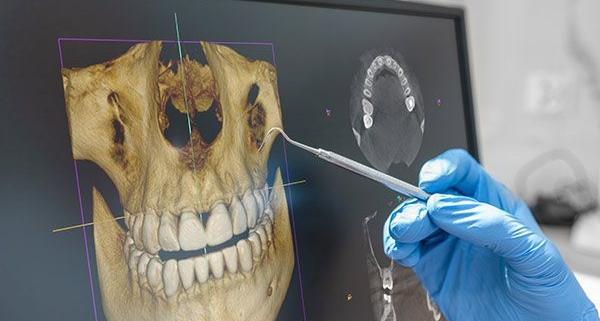diagnosi dentale