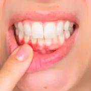 parodontologo: chi è e cosa fa