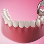 L'estrazione del dente fa male?